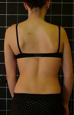 Woman after a therapy to her dislocated back.